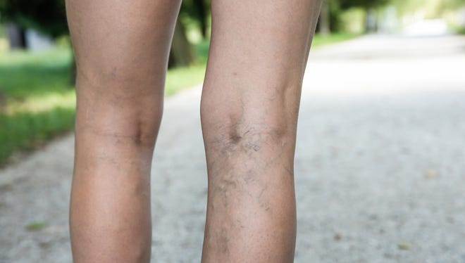 Sometimes, the blood flow in the veins can become impaired, potentially leading to varicose veins, which usually appear on the legs.