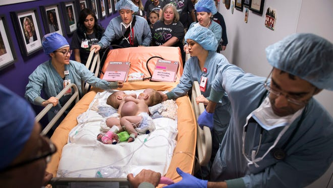 In this Jan. 13, 2018, photo provided by Texas Children's Hospital in Houston, hospital personnel wheel conjoined twins, Ann and Hope Richards, to surgery to separate the toddler girls. The successful surgery was announced Monday, Feb. 12, 2018.