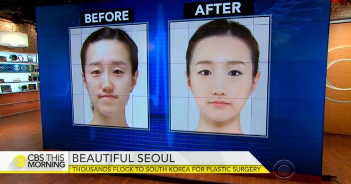 plastic surgery boom Cosmetic surgery, pervasive in south korea, is now the must-do activity for many chinese visitors.