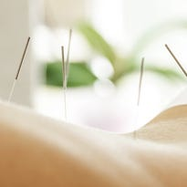 Acupuncture and Dry Needling Similar, But Different