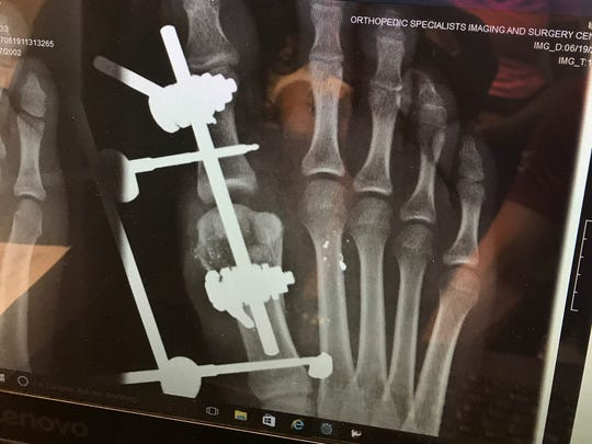 An X-ray of 14-year-old Parys Henry's hand that was hit by gunfire.