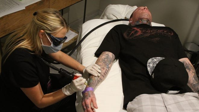 """RN Codie Koenke removes a tattoo from tattoo artist Justin Ramos of Yucaipa at the Palm Trees and Tattoos convention. RN Codie Koenke removes a tattoo from tattoo artist Justin Ramos of Yucaipa at the """"Palm Trees and Tattoos"""" event at the Palm Springs Hard Rock Hotel."""