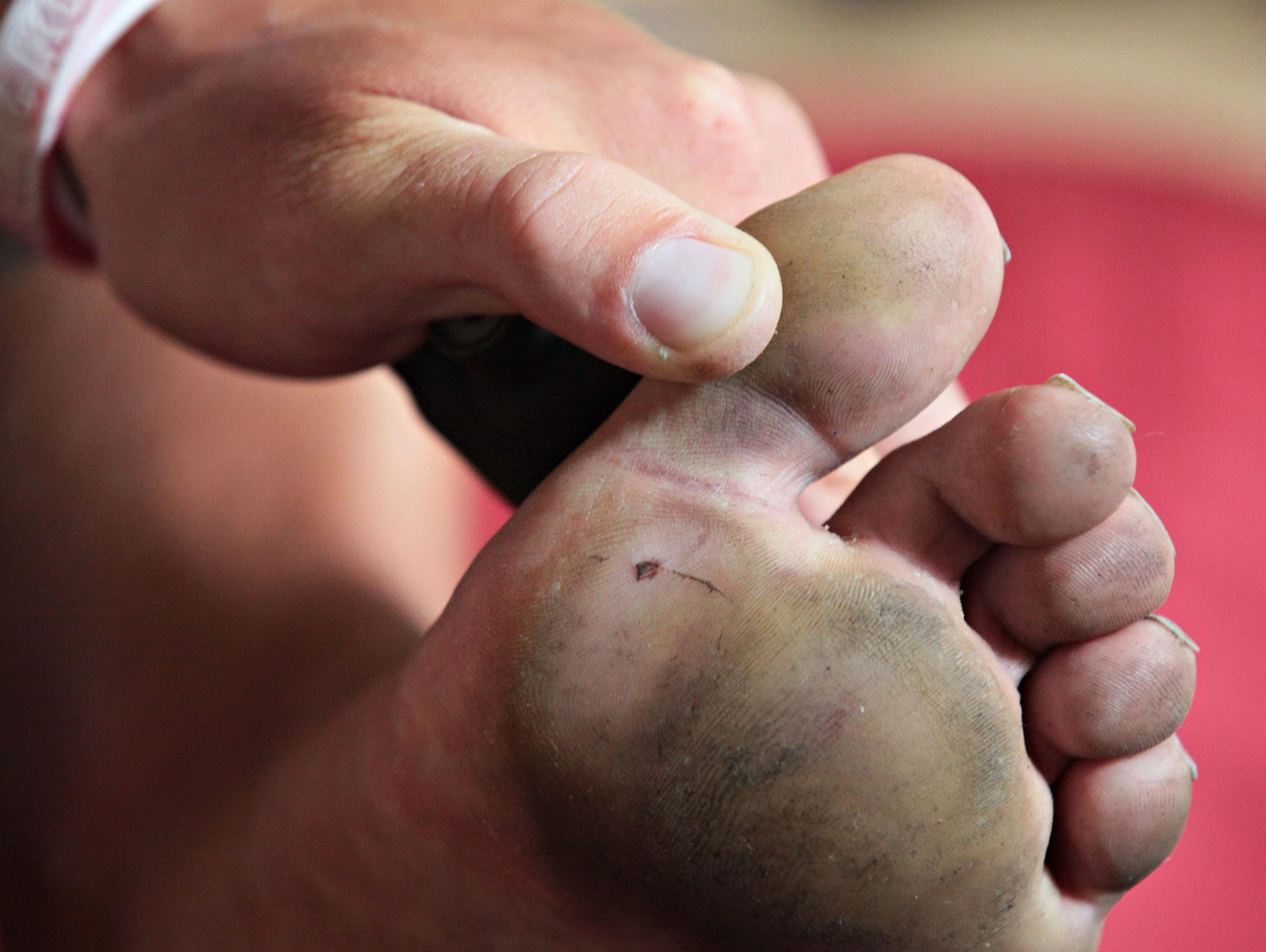 Jake Brown said the only injury to the soles of his