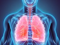 5 things you need to know about COPD