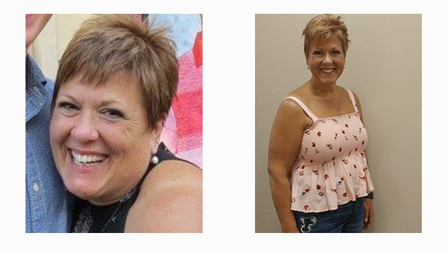 With the guidance of the TriHealth Weight Management team, Sharon Nobis began a journey of taking control of her weight in 2017.
