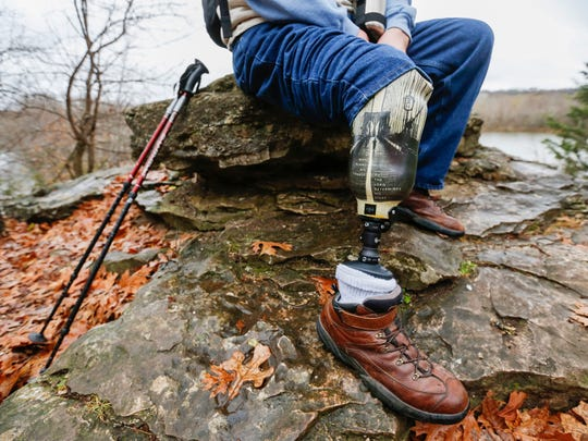 Steve Trostle shows his prosthetic leg while taking a break from a hike at Lake Springfield on Monday, Nov. 28, 2016. Trostle lost his right leg to an infection and is training to hike the Appalachian Trail.