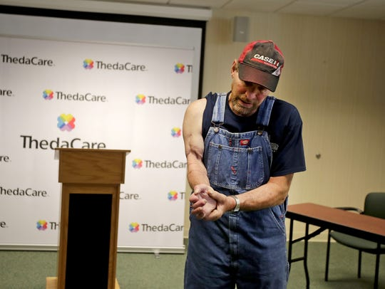 Tim Schroeder, of Black Creek, talks about right arm Thursday at ThedaCare Regional Medical Center-Neenah. His arm was severed and surgically reattached two years ago.
