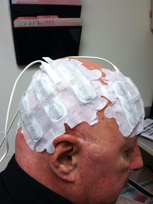 "Electrodes on Dr. Robert Saylor's head help ""confuse"" tumor cells so they can't grow."