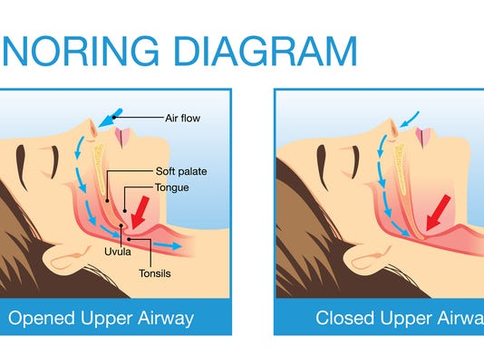 Sleep apnea: the serious sleep disorder