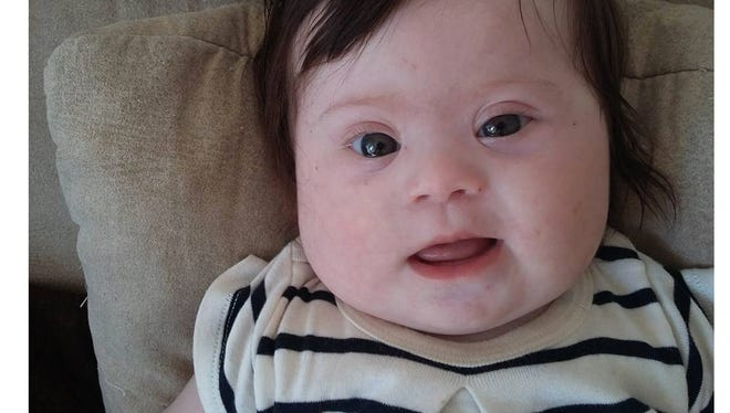 Caroline Boudet, the mother of a four-month-old with Down Syndrome, posted on Facebook what you can and can't say to the parents of a child with Down Syndrome.