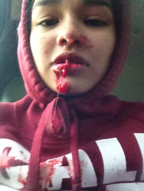 Maria Aleman injured her mouth in an ATV crash in 2013.