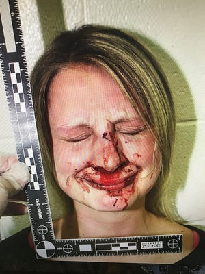 Jillian Beck suffered a broken and fractured wrist after she was thrown to the ground by a Las Cruces police officer in January 2013. The officer also slammed her face onto rocks. She and her husband were awarded $1.6 million in damages on Feb. 10, 2017, by a federal jury in Las Cruces.