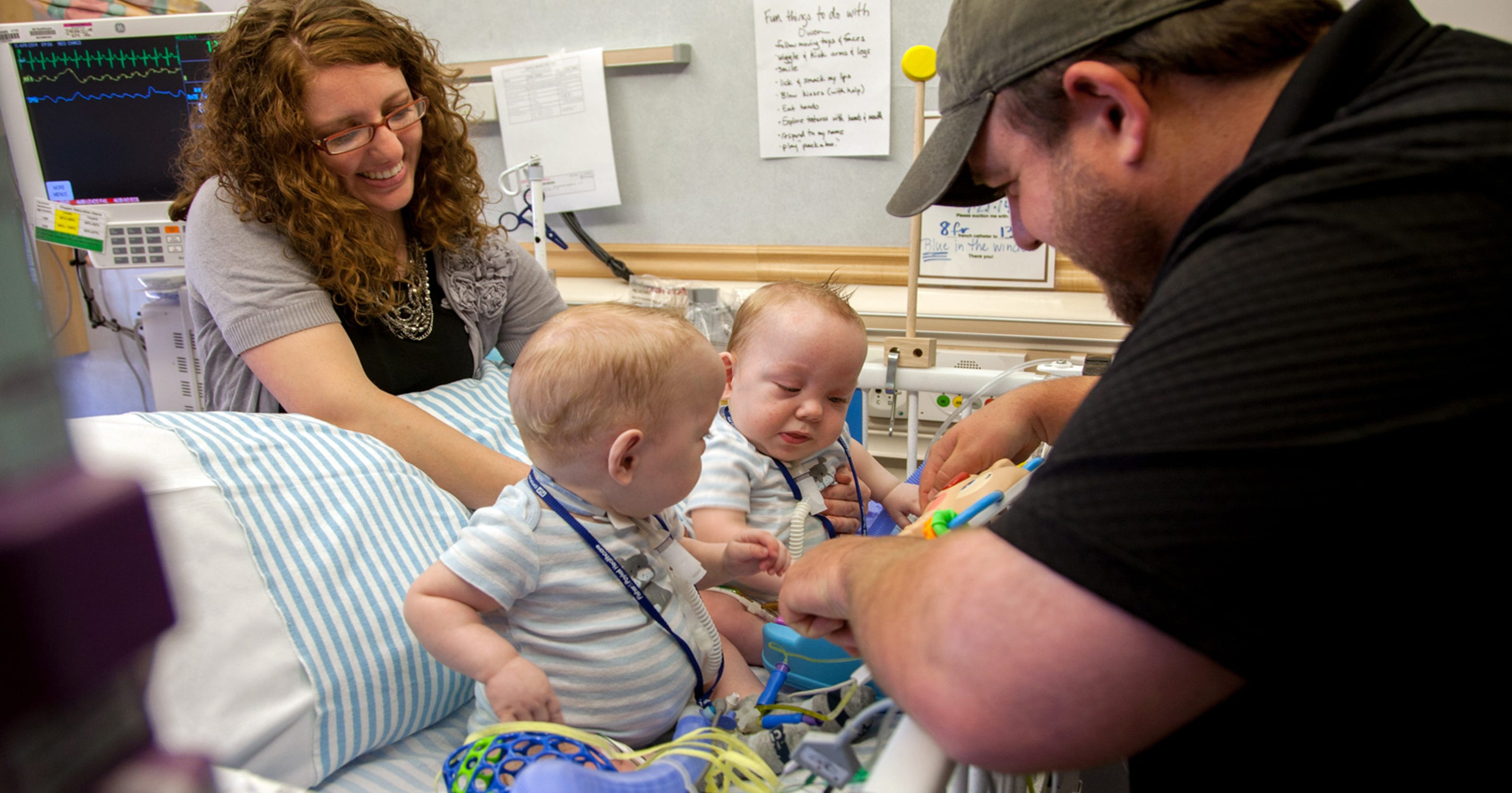 Once Conjoined Twins Leave Texas Hospital