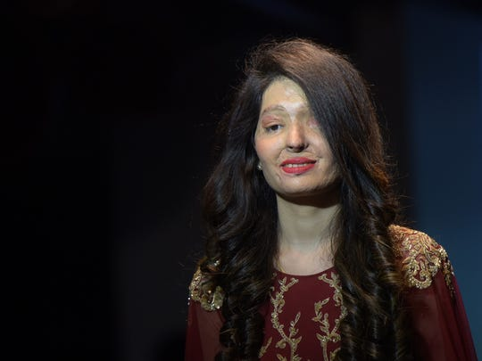 Acid-attack survivor and model Reshma Qureshi is the