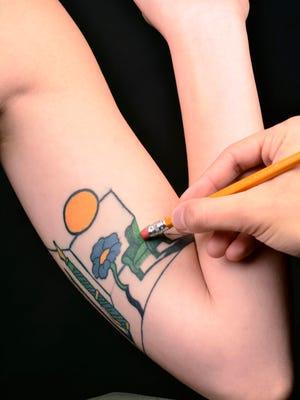 Tattoo Removal Illustration