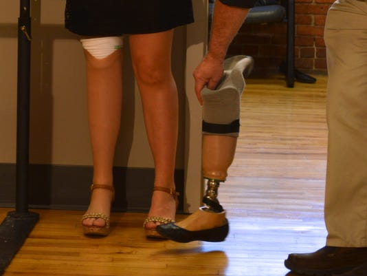 Hillary Cohen receives prosthetic