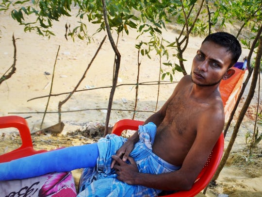 Mohammed Alam, 25, was injured when an elephant attacked