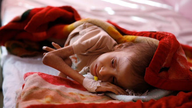 FILE - In this Jan. 24, 2016 file photo, a malnourished child lies in a bed waiting to receive treatment at a therapeutic feeding center in a hospital in Sanaa, Yemen. Save the Children, an international aid group said late Wednesday, Nov. 15, 2017, that an estimated 130 children or more die every day in war-torn Yemen from extreme hunger and disease. It said a continuing blockade by the Saudi-led coalition fighting Yemen's Shiite rebels is likely to further increase the death rate and that over 50,000 children are believed to have died in 2017. (AP Photo/Hani Mohammed, File)