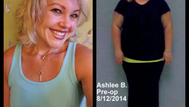 Ashlee Bradley before and after bariatric surgery.