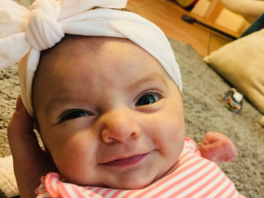 Lucia Torres, who is 4 months old, was born with a