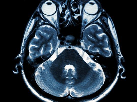 MRi stock photo.jpg