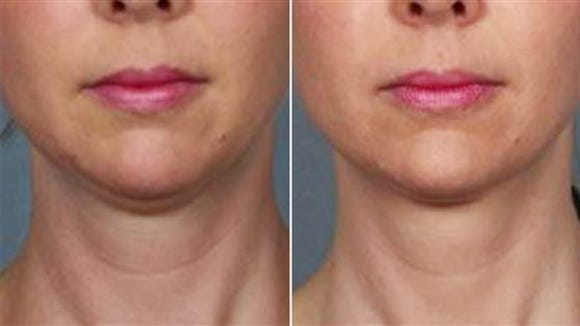 """An FDA panel recommends a drug for approval that would """"melt"""" your double chin."""