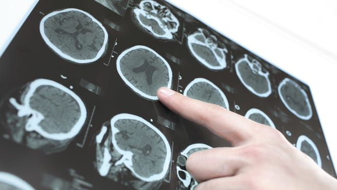 F.A.S.T. is an easy way to identify a possible stroke
