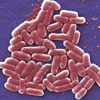 More than 132,000 pounds of Cargill ground beef recalled over E. coli risk with 1 dead, 17 sickened