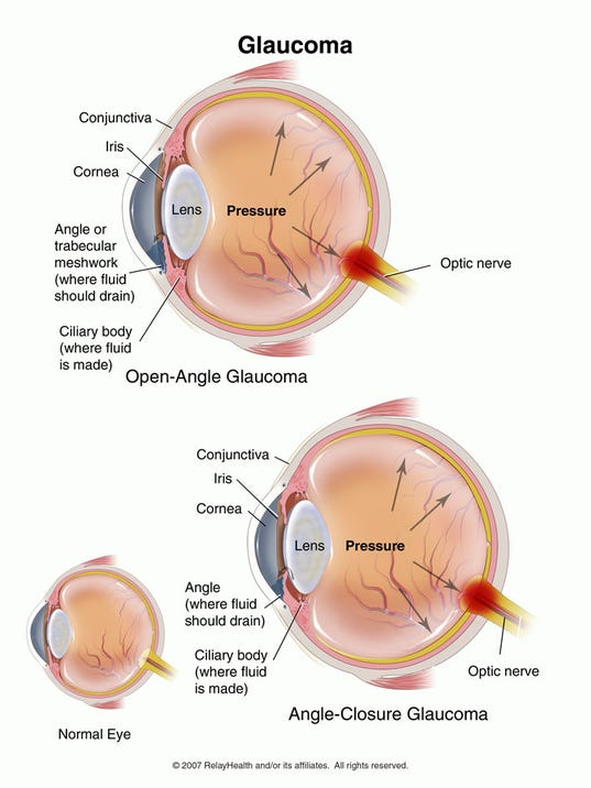 Glaucoma A Leading Cause Of Blindness