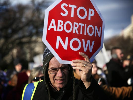 on abortion Though abortion is a divisive issue, more than half of us adults take a non-absolutist position, saying that in most – but not all – cases, abortion should be legal (33%) or illegal (24%) fewer take the position that in all cases abortion should be either legal (25%) or illegal (16.