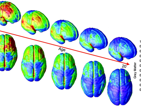 Research at the UCLA Laboratory of Neuro Imaging conducted in 2004 by Dr. Paul Thompson shows that judgment is the last to develop. Time-lapse MRI (magnetic resonance imaging) images of normal brain development from the ages 5 and 20 shows the growth and gradual loss of gray matter, which contains cells that process information. (Red areas contain more gray matter, blue areas less.) At the start of puberty, a thinning of gray matter begins, which corresponds to increased cognitive abilities. As the brain pares back redundant connections, it increases the amount of white matter that helps cells communicate and improves the ability to regulate decision-making and emotional arousal.