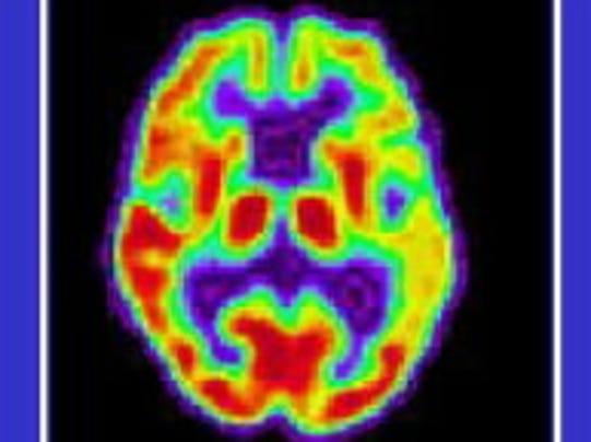 Alzheimer's brain scan