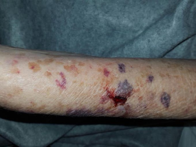Photos show an 84-year-old Mesa woman bruised and with