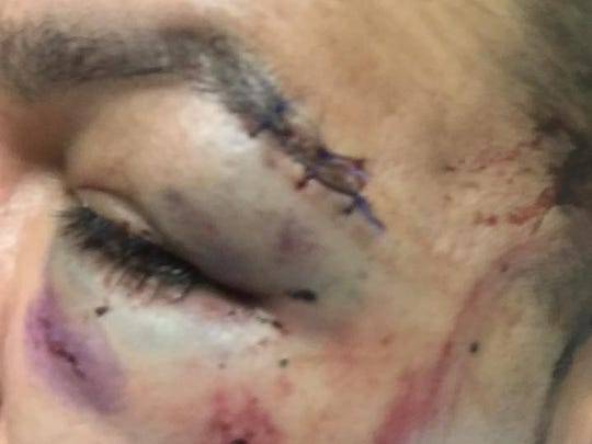 Josh Valdez posted photos of his injuries on Facebook after he was attacked at a birthday party early on Sunday at a residence on North Carlton Avenue in Farmington, according to an arrest warrant affidavit. Valdez says he was attacked because he is gay.