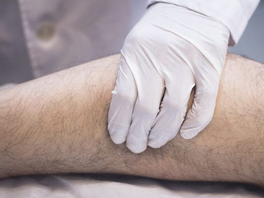 Discoloration on legs could be caused by vein disease