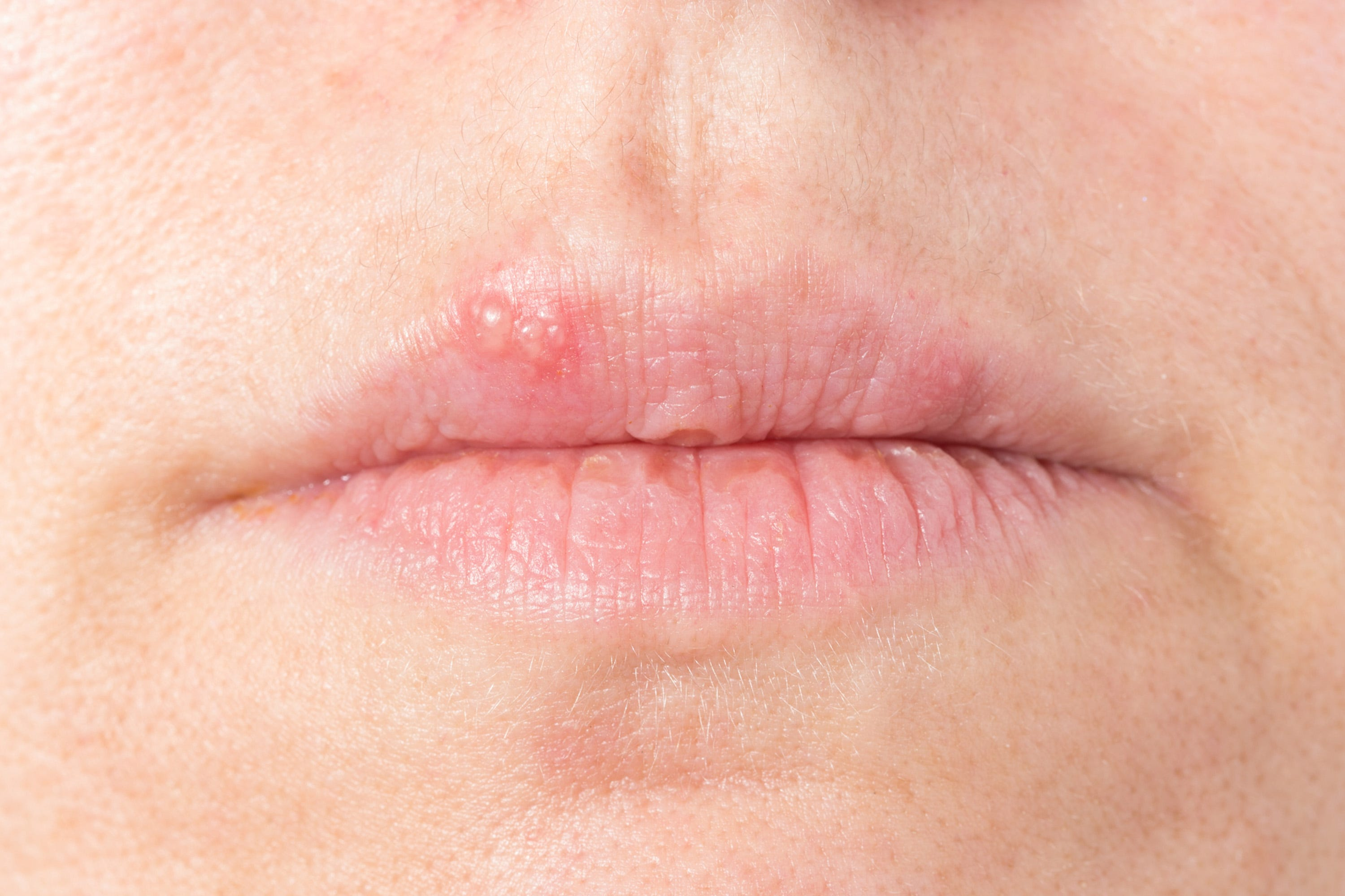 Herpes - Herpes Pictures and Cold Sores Pictures