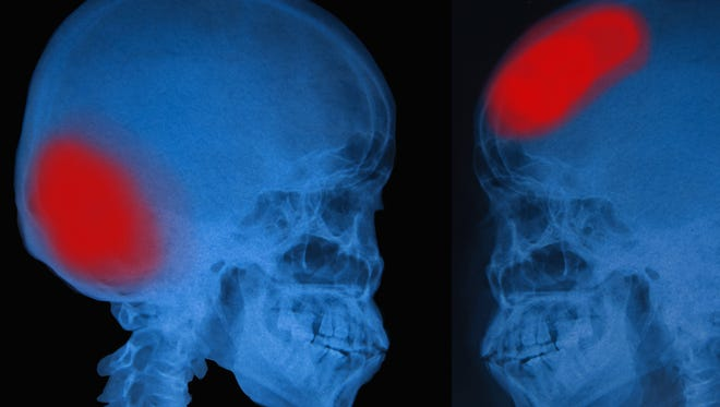 View of film X-ray skull of human.