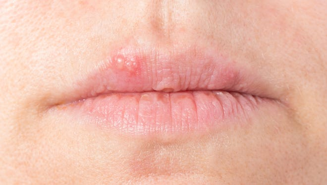 There's no cure for HSV infection, but these remedies may help the presence of cold sores. (Dreamstime)