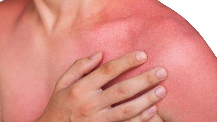 Learn symptoms and tips to avoid heat-related illnesses