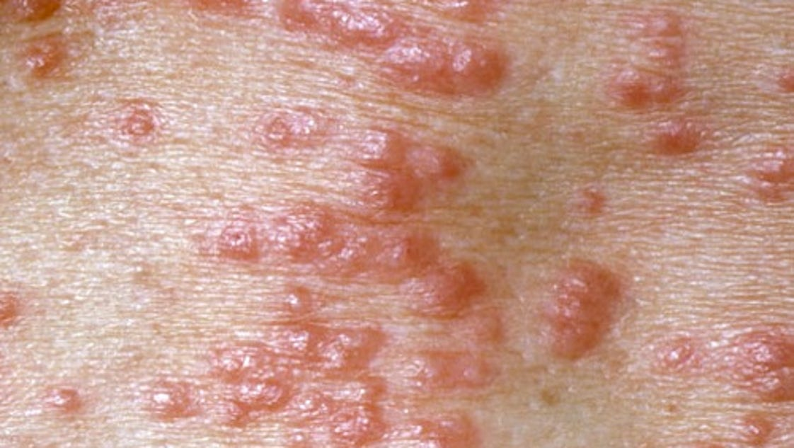 how to get scabies out from under your skin