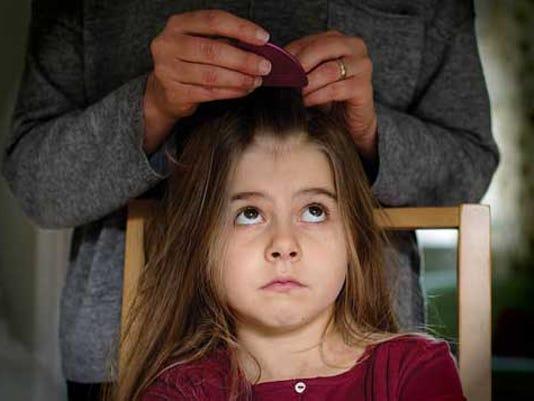 636524110095291468-courier-pst-head-lice.jpg