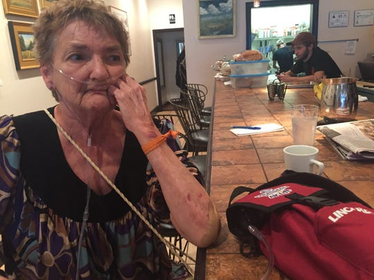 Shirley Teter, 69, of Asheville said she was assaulted while protesting Monday's Donald Trump rally. Teter has chronic obstructive pulmonary disease and said she was in the hospital until 2 a.m. Tuesday.