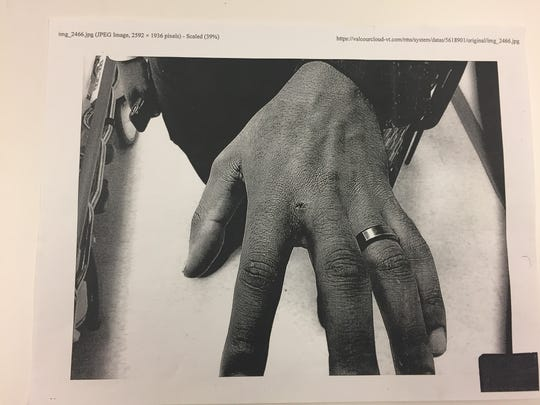 The puncture wound on Officer Derrick Hodges' hand following the arrest, as entered into evidence