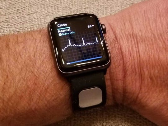 The KardiaBand app for Apple Watch showing heart activity.
