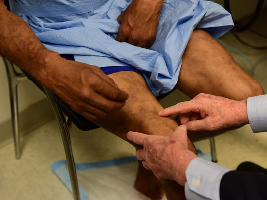 Dr William Levis examines a patient with leprosy at the Dermatology Clinic at Bellevue Hospital.