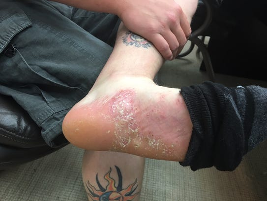This undated photo of Dillon Clark shows blistering on his feet caused by contact dermatitis. Clark is one of six former TCI Composites employees suing the wind blade maker, claiming they were fired after contracting skin conditions caused by chemicals used at the Newton facility.