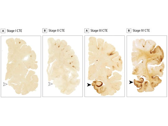 Tissue samples from former college and NFL football players' brains show various stages of chronic traumatic encephalopathy. From left, the Stage 1 sample is from a former college football player. The Stage 2, 3 and 4 samples are from former NFL players. Indications of CTE appear dark brown on the samples.