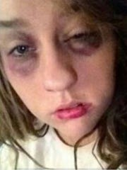 Mandy Lindsey's injuries following one of many  domestic