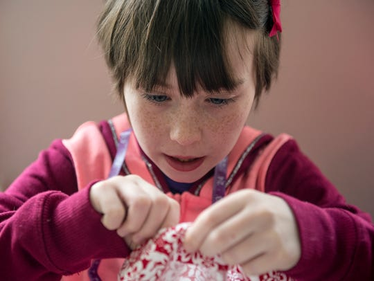 Meadow Manning, 10, of York, removes the pins after