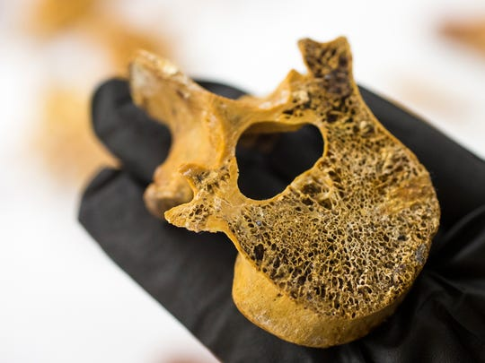 Forensic anthropologist Dr. Laura Fulginiti holds part of a vertebrae of a murdered young White female from June,1984, at the Maricopa County Office of the Medical Examiner, in Phoenix on June 24, 2014.
